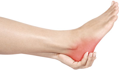 Plantar fasciitis is the most common cause of heel pain. Learn how to treat plantar fasciitis..